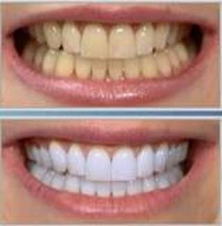 dissolving whitening strips instructions
