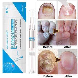 3ML Liquid Nail Treatment Pen Cuticle Oil Pen Anti Nail Toenail Fungus Nails Care Solution Tool TS