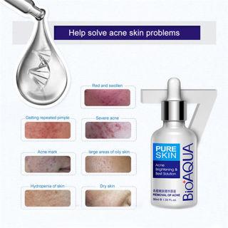 Free: Removal Acne Scar Marks Essence Cream Treatment Dark Spot Face