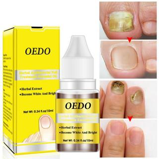 10ml Bactericidal Natural Essence Oil Nail Liquid Repair Treatment Nail Toe Fungus Removal Moistur